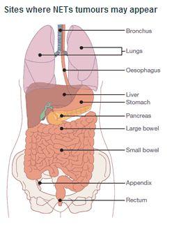 NETs Anatomy